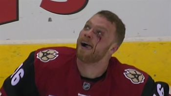 Domi lands on IR with upper-body injury